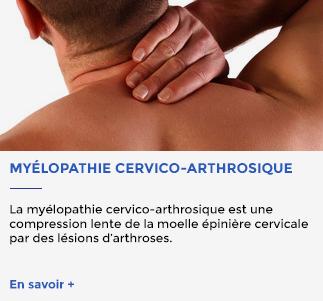 myelopathiethumb