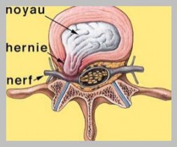 Hernie discale lombaire paramédiane comprimant la racine nerveuse.