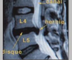 Volumineuse hernie discale L4-L5.
