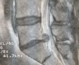 Volumineuse hernie discale exclue comprimant la racine S1 et le fourreau dural.