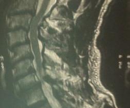 Canal cervical étroit sur plusieurs niveaux responsable d'un trouble de la marche chez un patient de 75 ans.