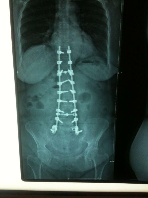 Scolioses • Chirurgie de la colonne vertébrale