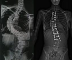 Scoliose malformative avant et après correction chirurgicale chez une patiente de 17 ans.