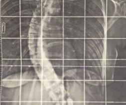 Scoliose thoraco-lombaire de 60° évolutive chez une patiente de 25 ans.